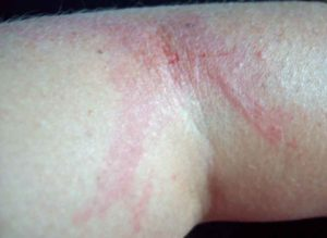Very fetching allergic reaction from hop leaves